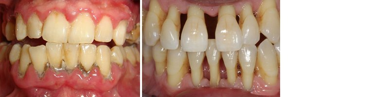 Gum Disease Before and After 1