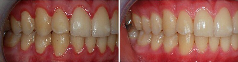 Gum Disease Before and After