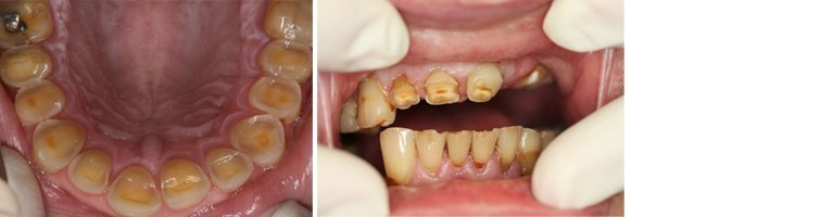 Reconstrucive Dentistry Before