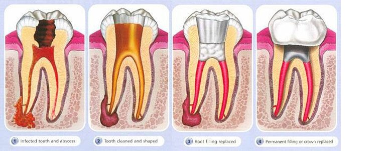 Root Canal Treatments Before and After