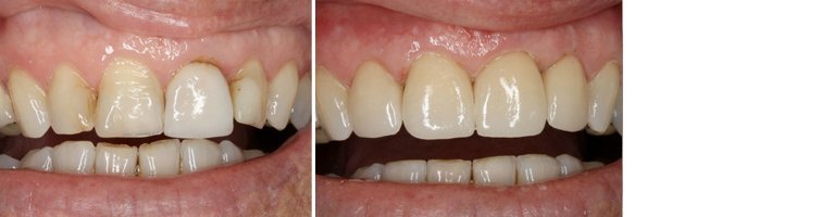 Same Day Dental Crowns Before and After