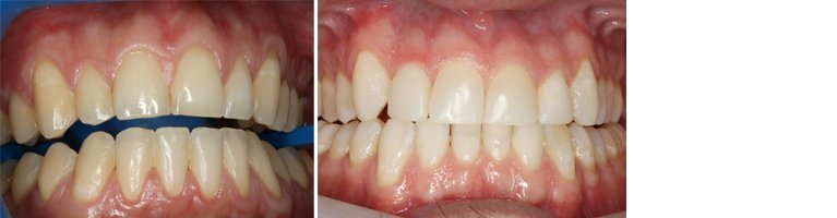 Teeth Whitening Dental Perth