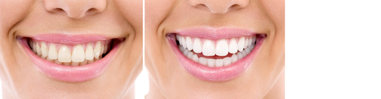 Teeth Whitening Perth - Before and After Photos