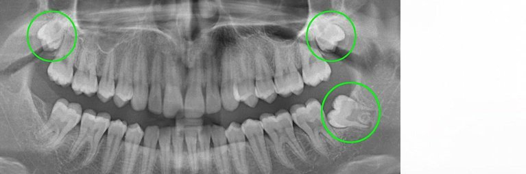 Wisdom Teeth Removal Perth
