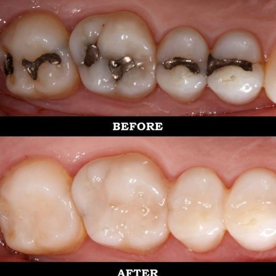 non-metal fillings before after