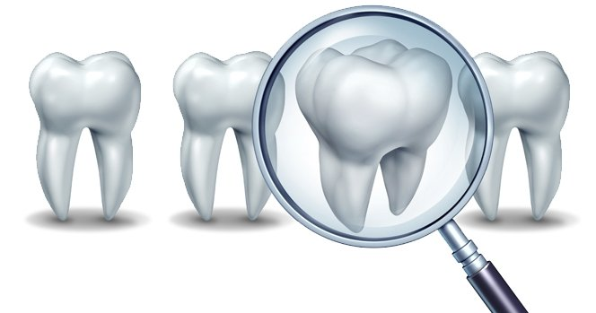 wisdom teeth and root canals