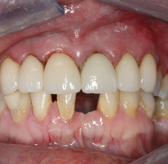 mouth crowns after